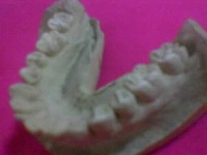 Teeth-300x225