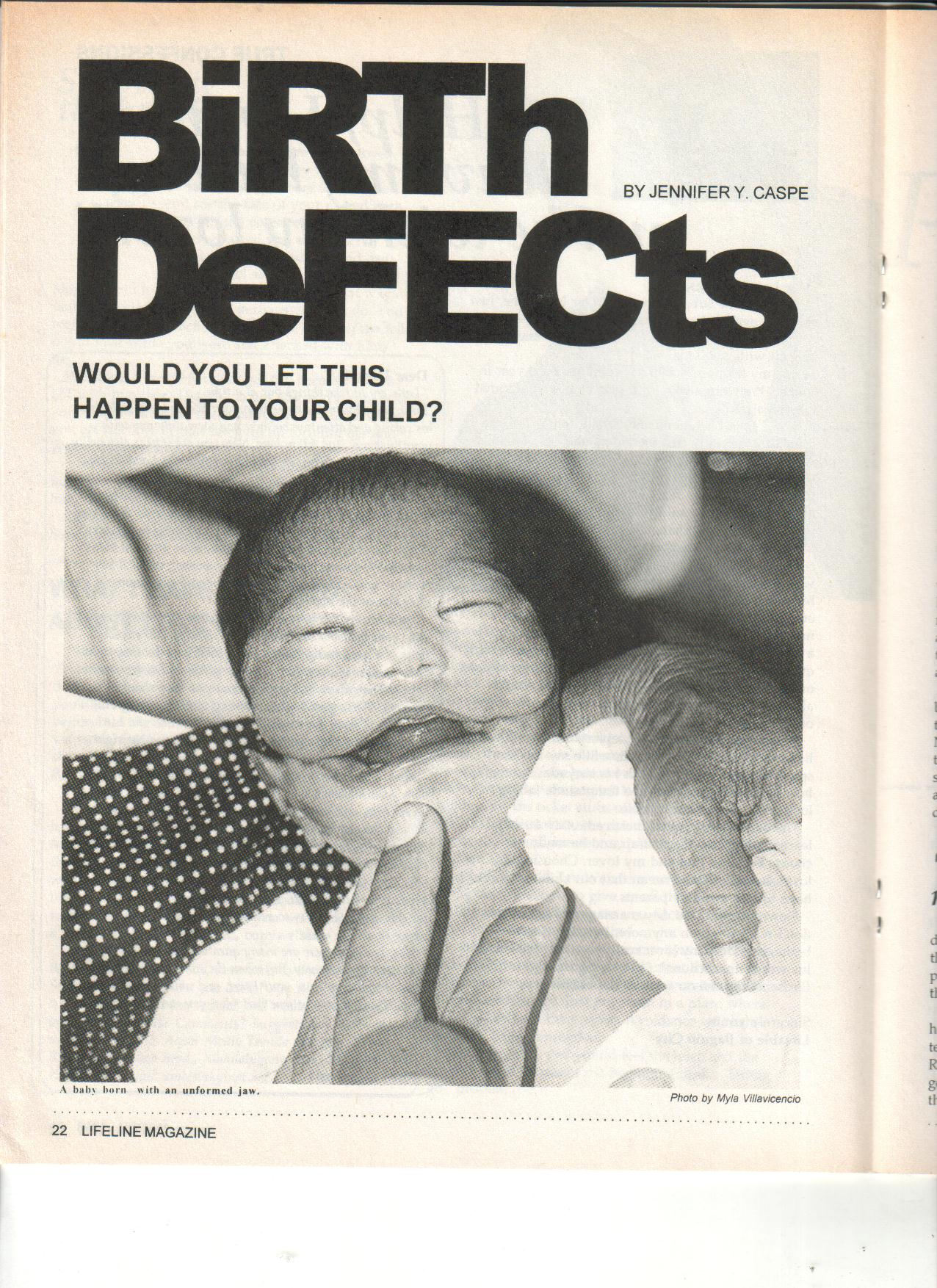 3-98 Birth Defects